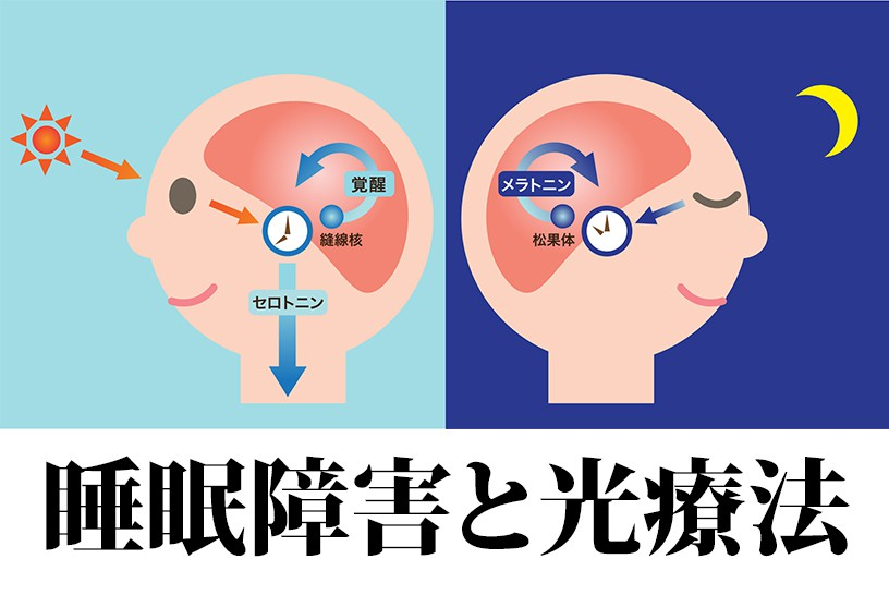 介護現場で対応に苦慮する認知症の方の睡眠障害…光療法のエビデンスを調査