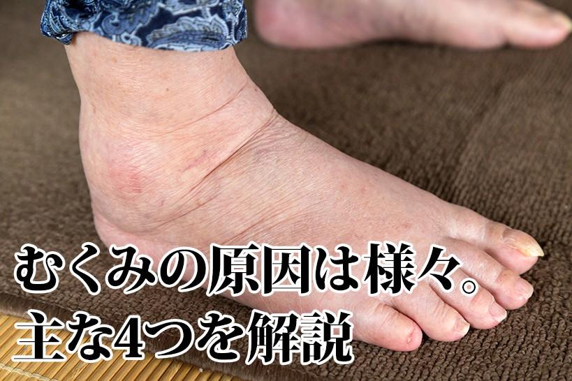 スマートな脚は健康の証!?介護施設でできるむくみ対策をご紹介します!