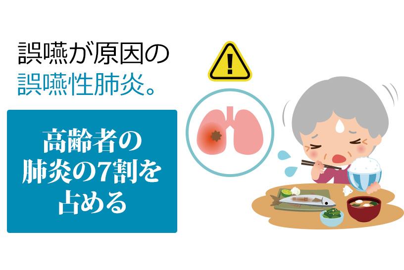 高齢者に多い誤嚥性肺炎、発症の原因は加齢?分かりやすく解説します