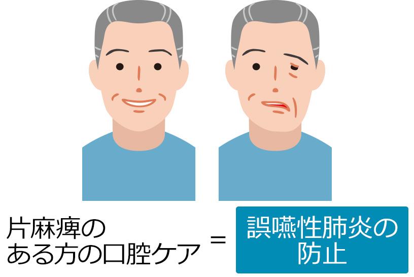 片麻痺がある人の口腔ケア方法は?観察項目・介助のコツを解説します