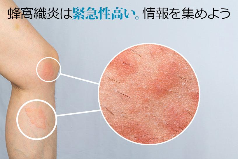 緊急性の高い発赤!蜂窩織炎(ほうかしきえん)