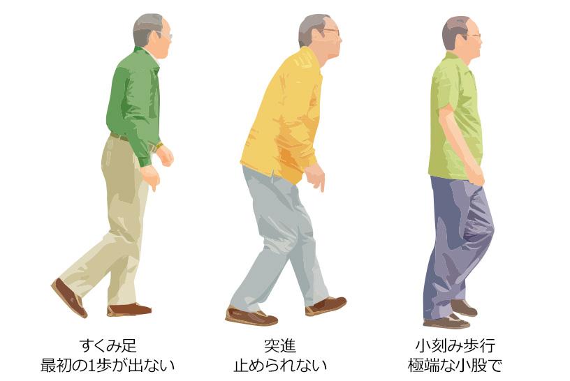 パーキンソン病の歩行障害の特徴