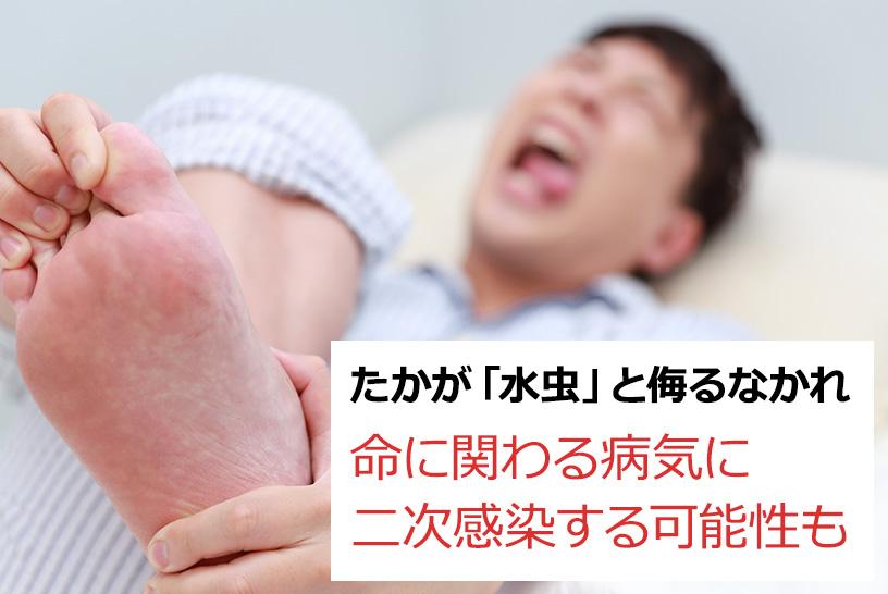 気になる症状を見つけたら早めに皮膚科の受診を