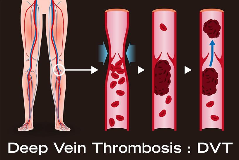 深部静脈血栓症(DVT)は疼痛があるって本当?経験した看護師が語る、症状のつらさと患者が苦戦する予防法とは