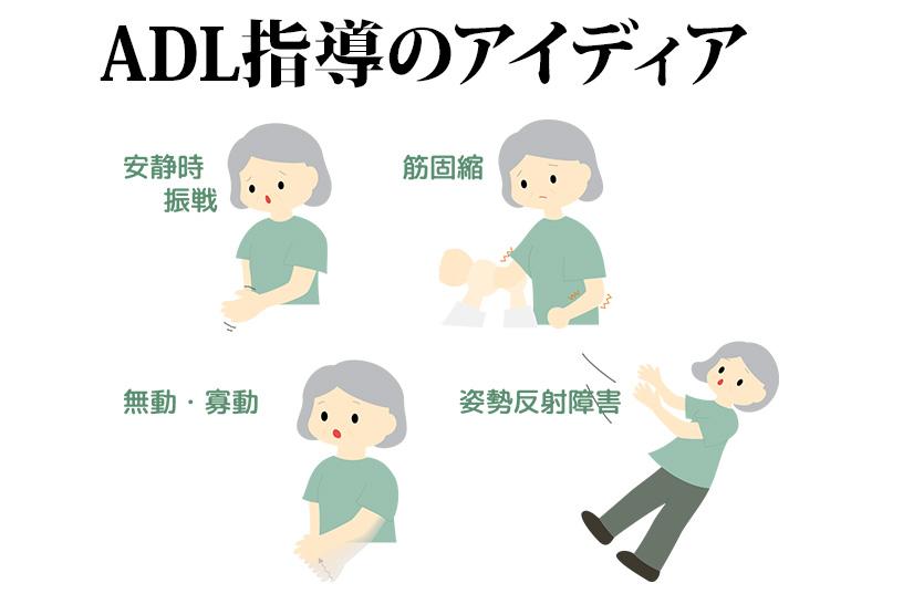 作業療法士が解説!パーキンソン病の患者さんのADL指導に使えるアイデア