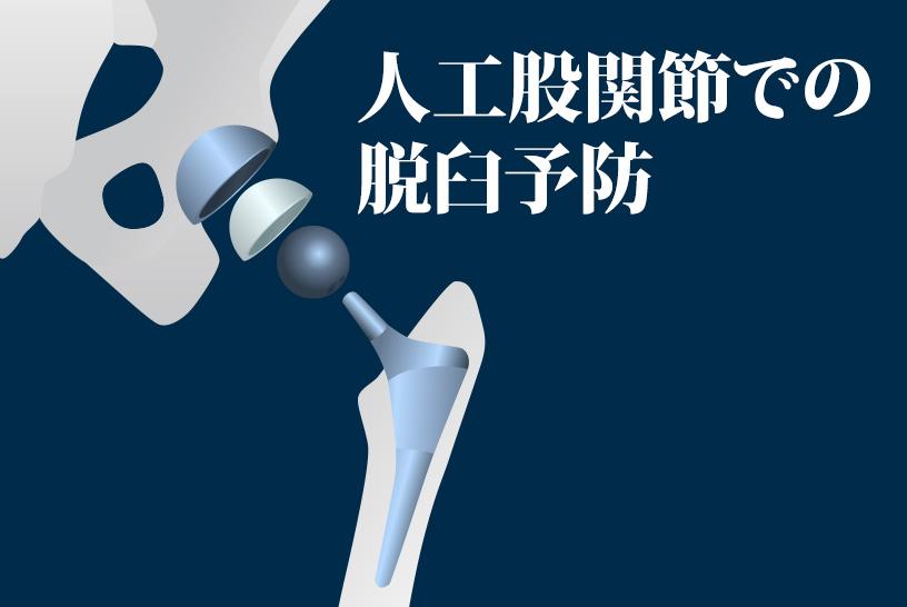 人工股関節での脱臼予防のために脱臼肢位や日常生活での注意点を再確認しよう