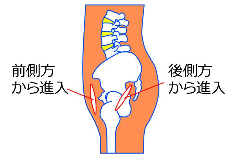 人工股関節での脱臼予防のために脱臼肢位や日常生活での注意点を再確認しよう | OGメディック