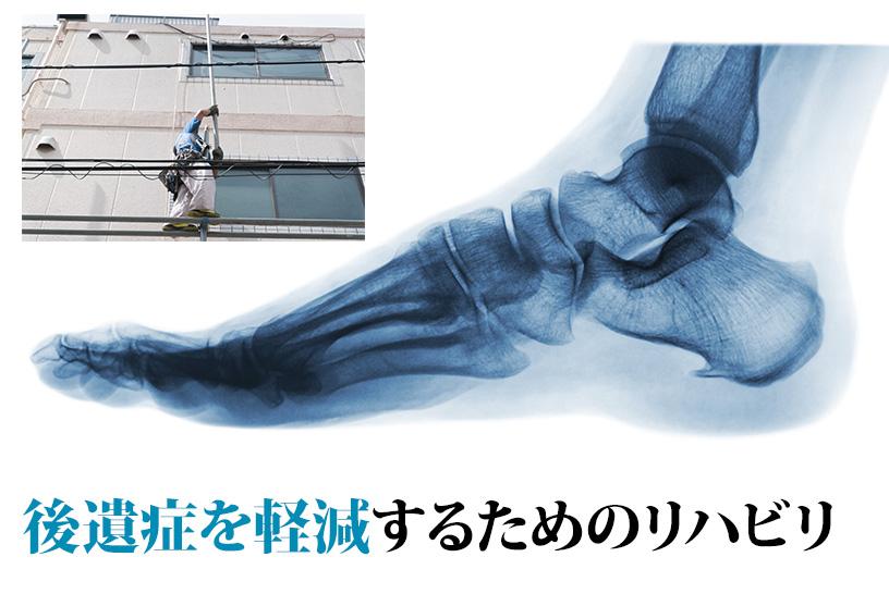 後遺症の残りやすい踵骨骨折!後遺症軽減のために取り組みたいリハビリを紹介します!