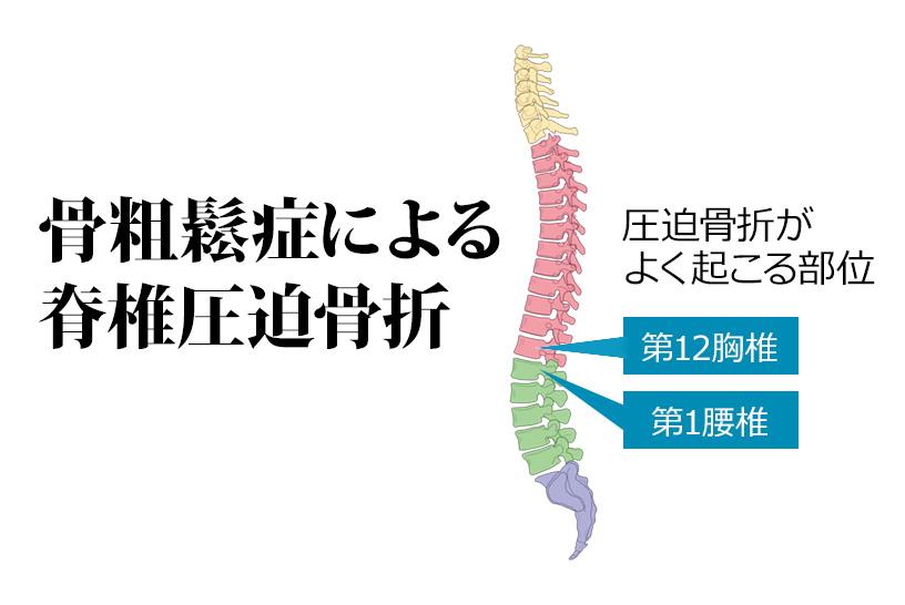 骨粗鬆症が原因の脊椎圧迫骨折。急性期と離床後のリハビリポイントを解説