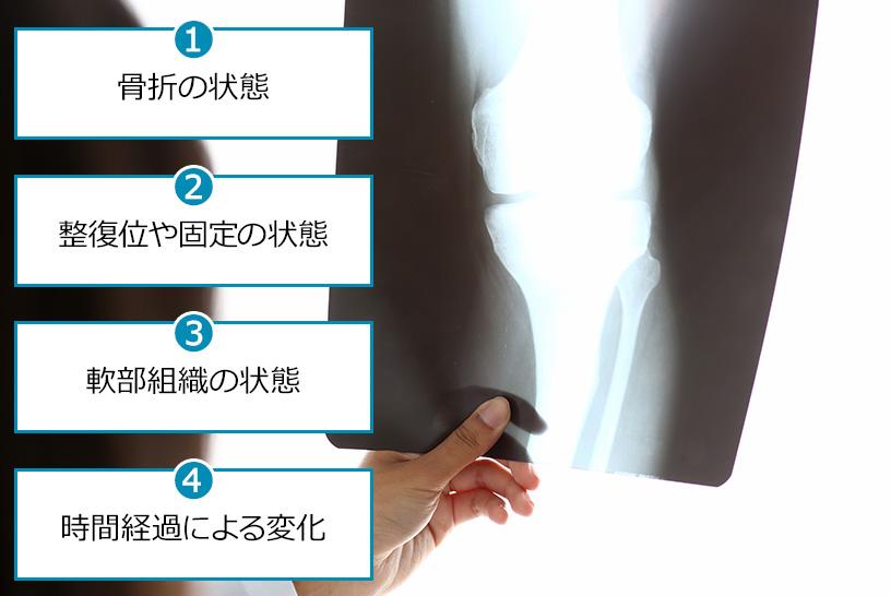 レントゲンで骨折や固定方法、軟部組織の状態を把握しよう