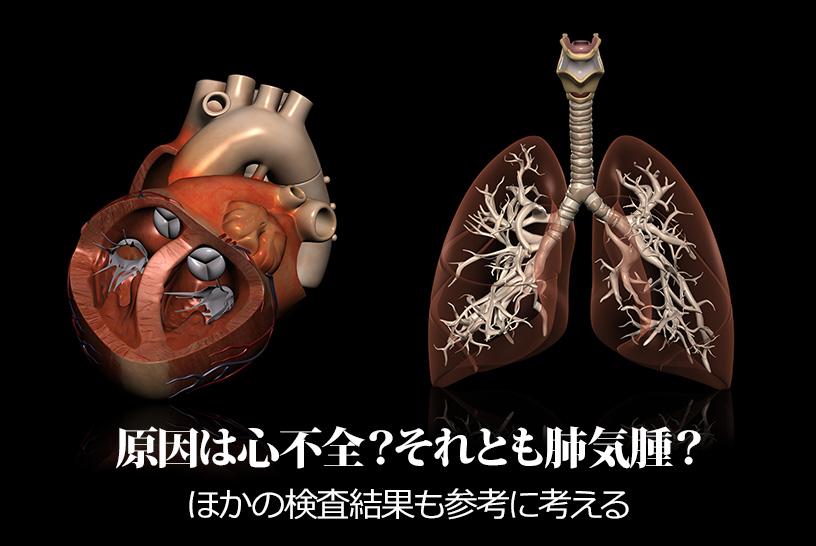原因は心不全?それとも肺気腫?ほかの検査結果も参考に考える