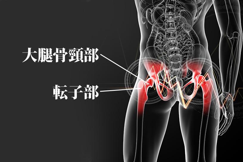 大腿骨頸部、転子部骨折のレントゲンを読むポイント