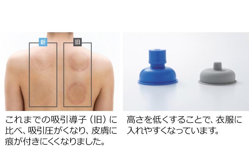 狭い範囲でピンポイントの治療に適した極小の導子や、温熱刺激を同時にできるホット導子