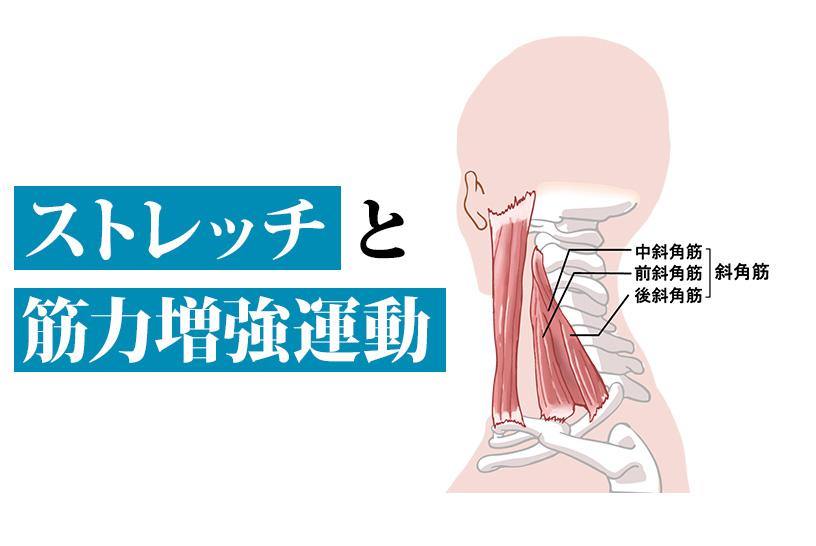 胸郭出口症候群のリハビリとは
