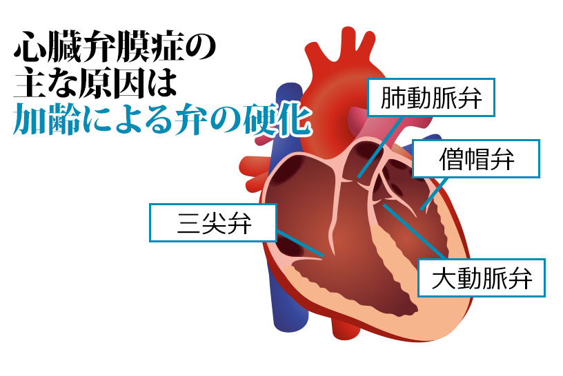 心臓弁膜症のリハビリ上の注意事項