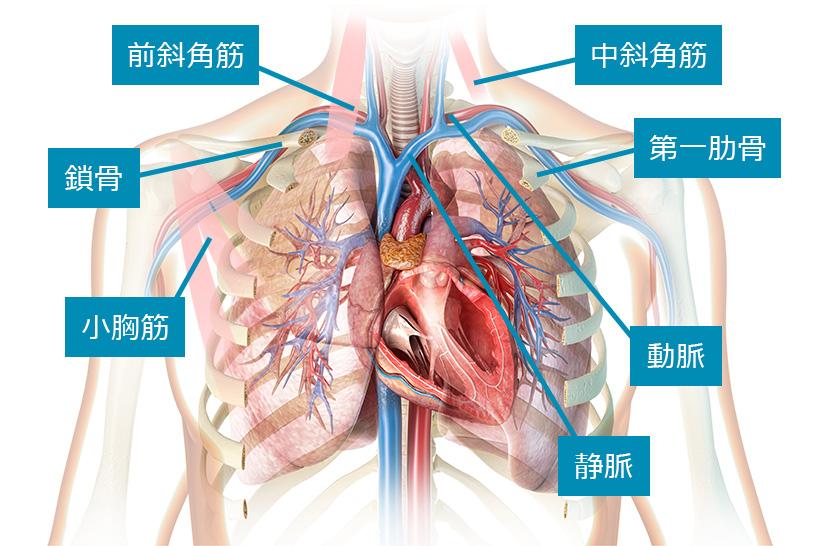 胸郭出口症候群の原因や症状、どんな人がなりやすいのか