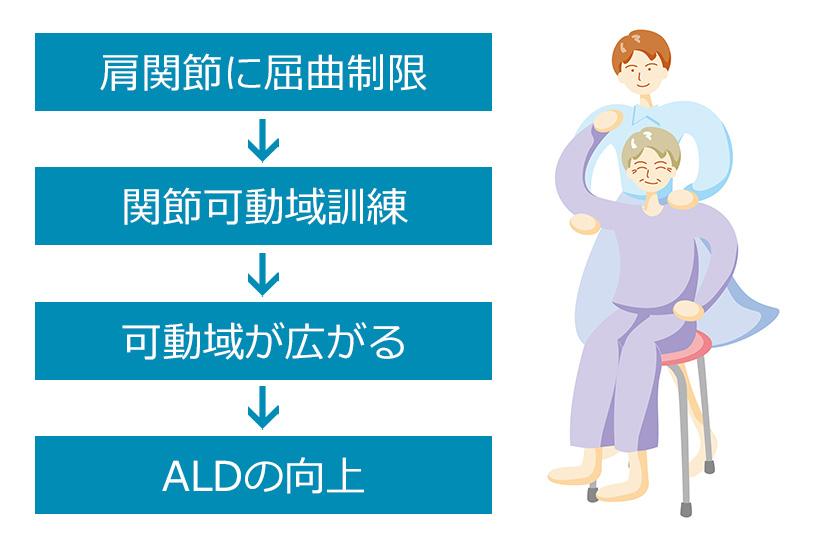 関節可動域の拡大はADLにもつながる
