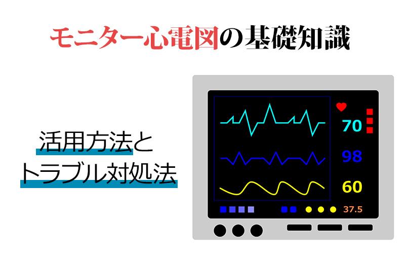 モニター心電図を理解しよう!セラピストが押さえておきたいポイントを解説します