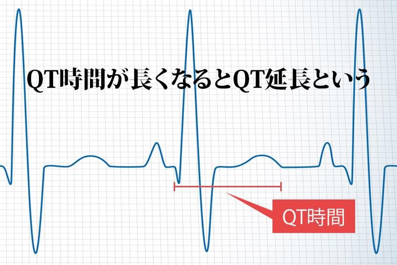 心電図波形ではQT時間の延長に注意