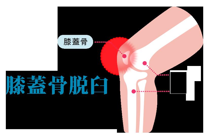 膝蓋骨脱臼のリハビリ方法と治療方法を解説