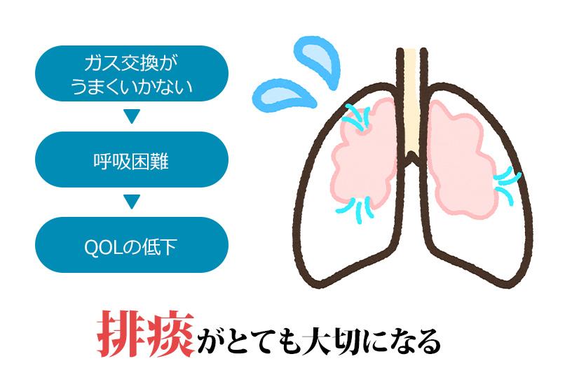 呼吸リハビリにおける排痰法の重要性。どのような患者さんにどんなときに行うのか?