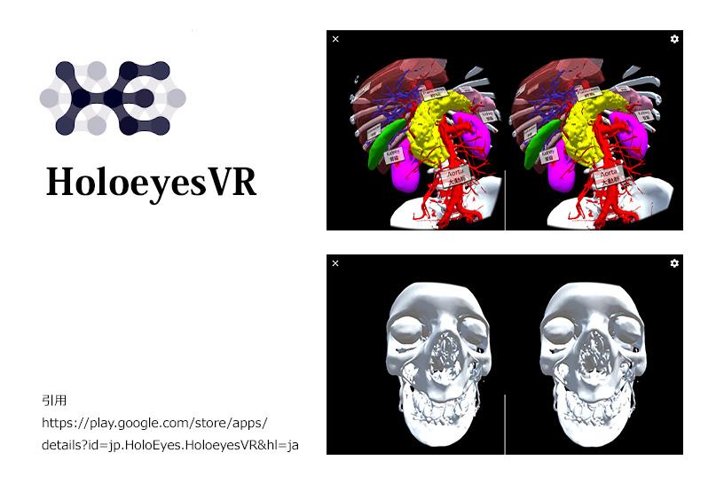 HoloeyesVRを活用して、臓器の位置と大きさを正確に理解させる