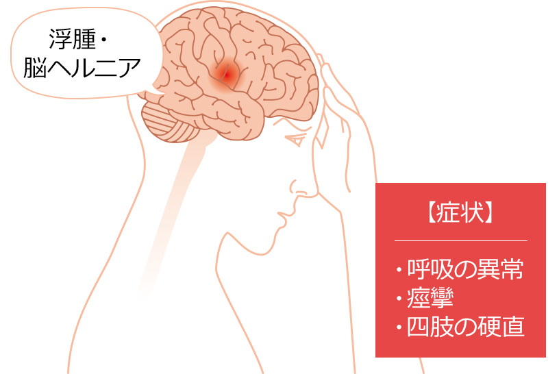 眼の反射に対する反応が不良、もしくは悪化しているなと感じたときには?