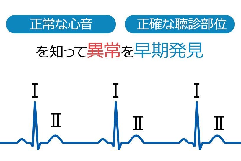 まずは覚えたい、心音を聴診する方法と心雑音の種類