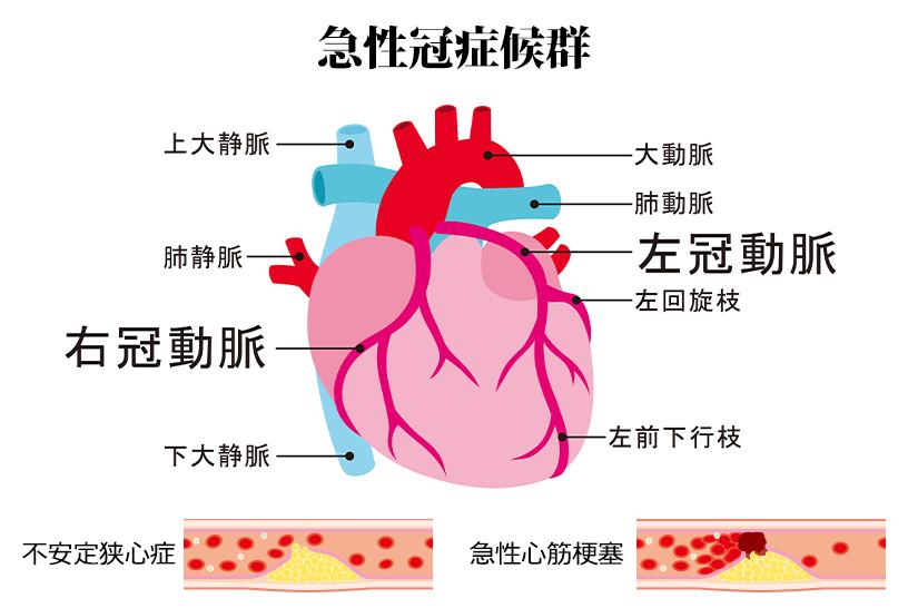まずは復習、冠動脈疾患とはどのような病態なのか