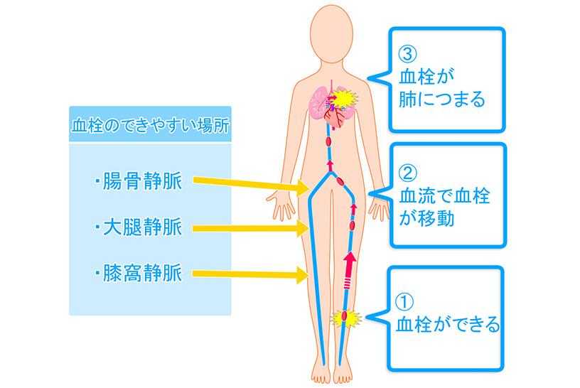 まずは復習、肺塞栓症とはどのような病態なのか