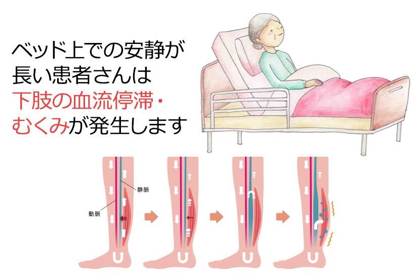 発症の多くは下肢深部静脈血栓症が原因