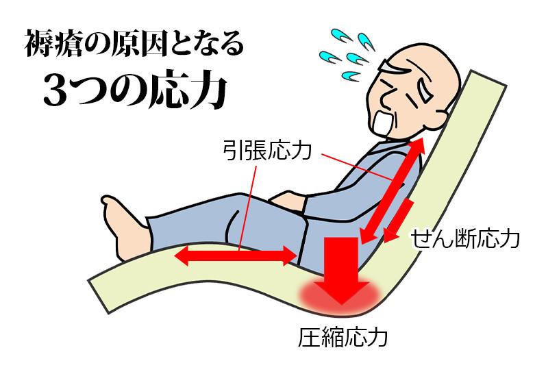 褥瘡の原因となる3つの応力