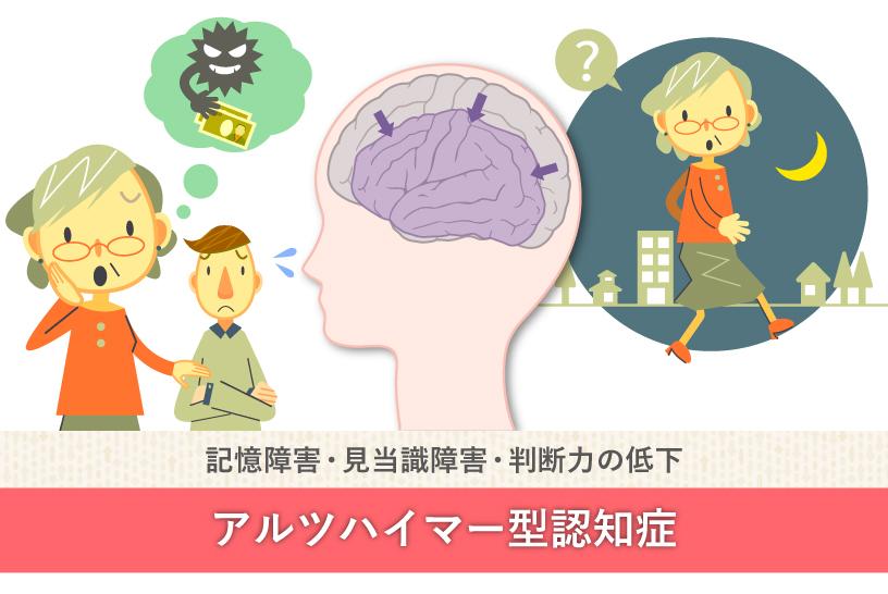 記憶障害・見当識障害・判断力の低下 アルツハイマー型認知症