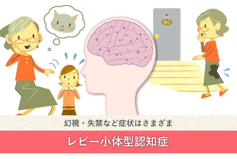 幻視・失禁など症状はさまざま レビー小体型認知症