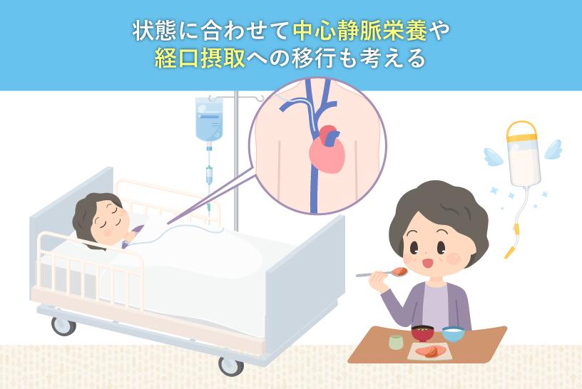 状態に合わせて中心静脈栄養や経口摂取への移行も考える