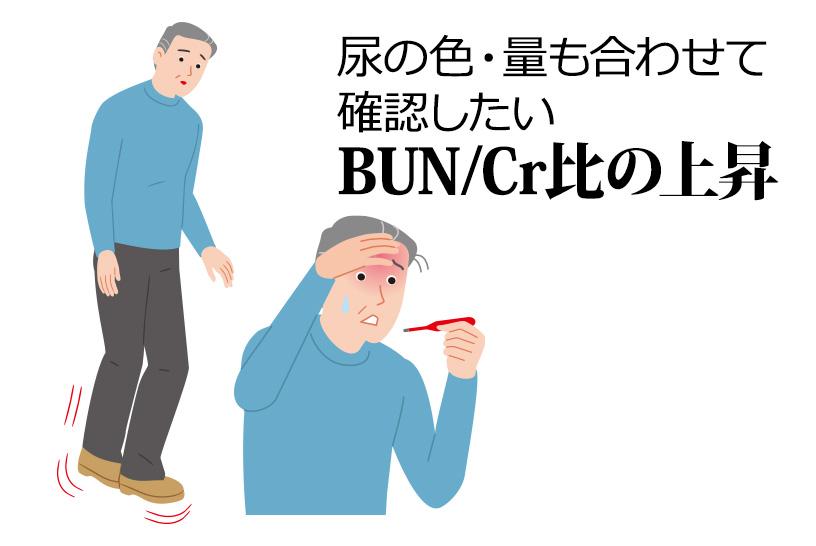 尿の色・量も合わせて確認したい BUN/Cr比の上昇