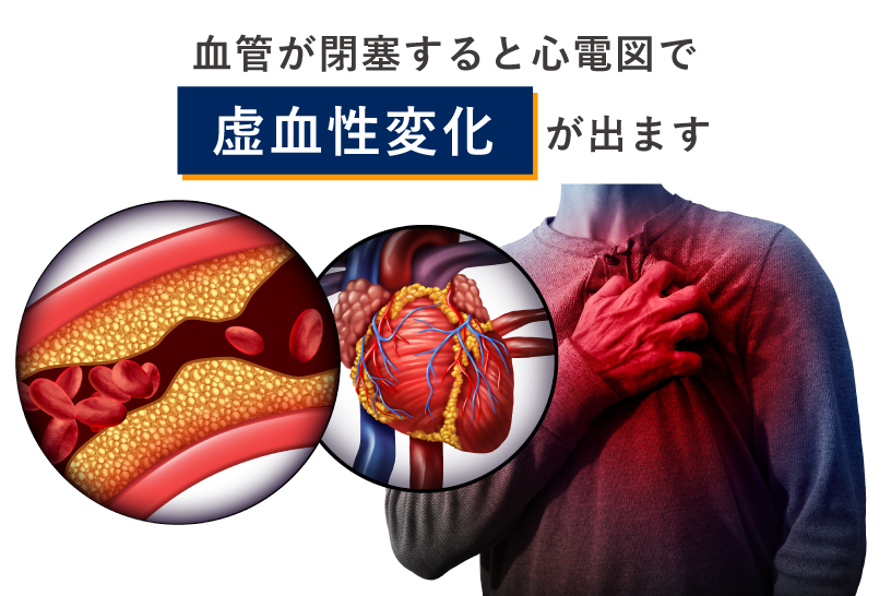 血管が閉塞すると心電図で虚血性変化が出ます