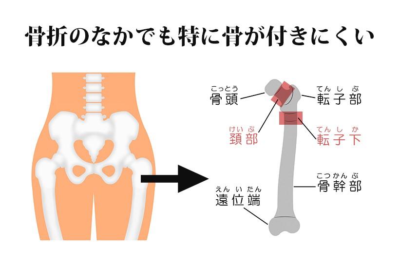 下肢骨折の代表例!大腿骨近位部骨折のリハビリと自宅に帰るためのポイント
