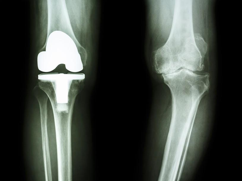 人工膝関節手術のリハビリってなにをするの?自宅復帰までの流れを解説!