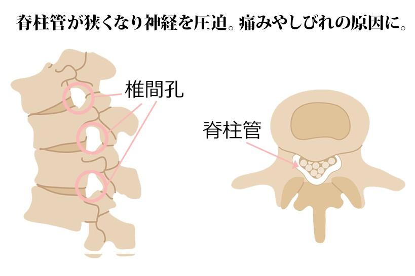 管 ストレッチ 症 脊柱 狭窄