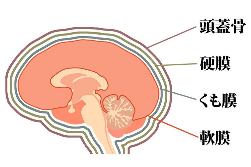 慢性硬膜下血腫01