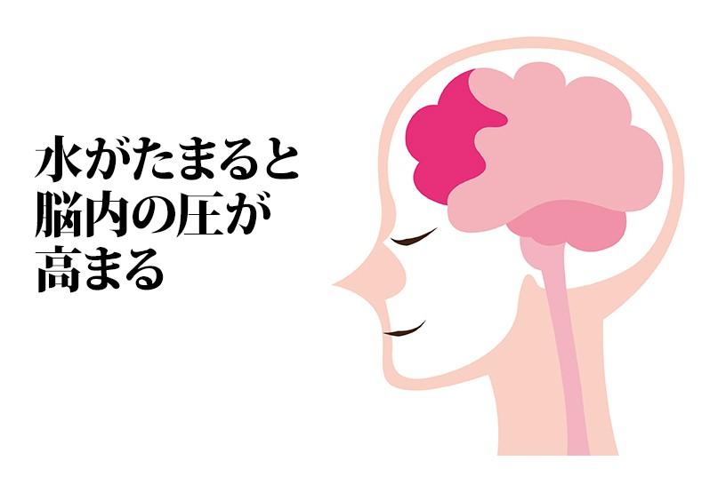 水がたまると脳内の圧が高まる