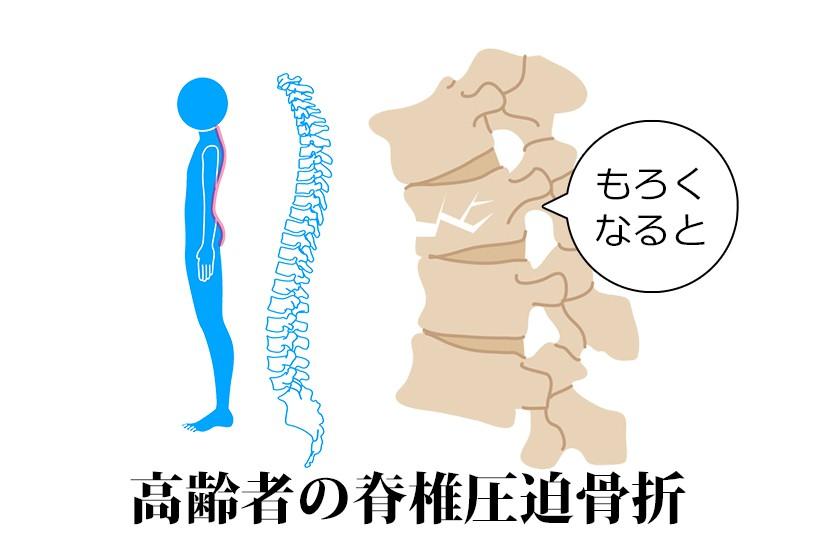 高齢者に多い脊椎圧迫骨折を予防するには!?理学療法士が具体的な対策をお伝えします
