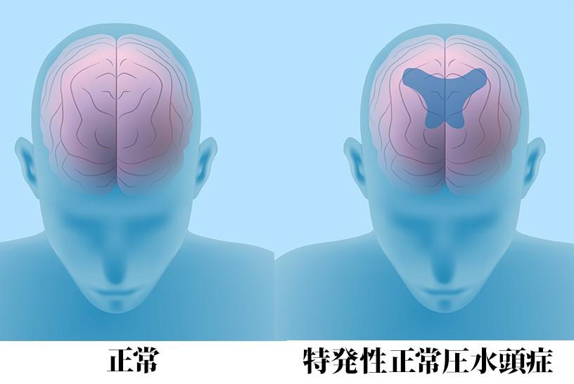 歩行障害・認知症・尿失禁。その認知症、治療できるかもしれません。特発性正常圧水頭症(iNPH)をご存じですか?その1