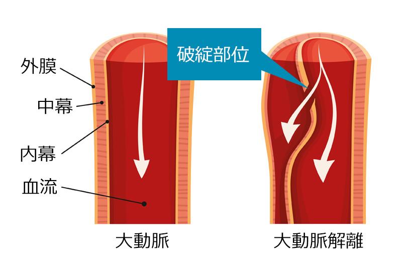 大動脈解離という病気を知っていますか
