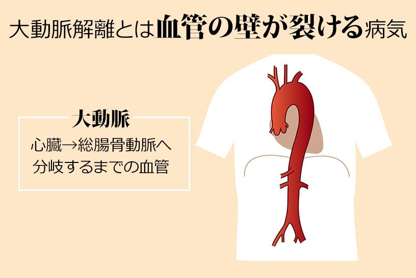 大動脈解離とは血管の壁が裂ける病気