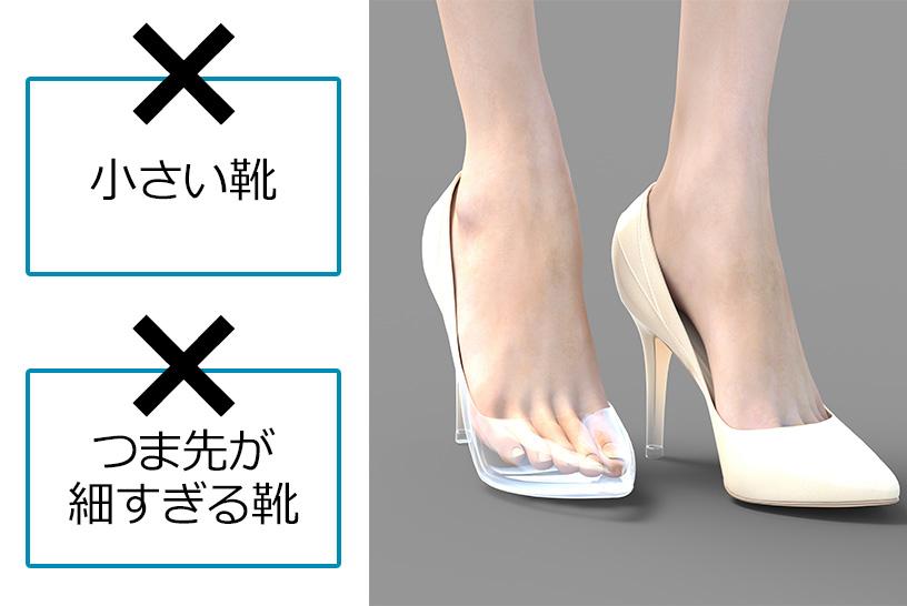 ハイヒールは要注意!サイズが小さすぎる靴はNG