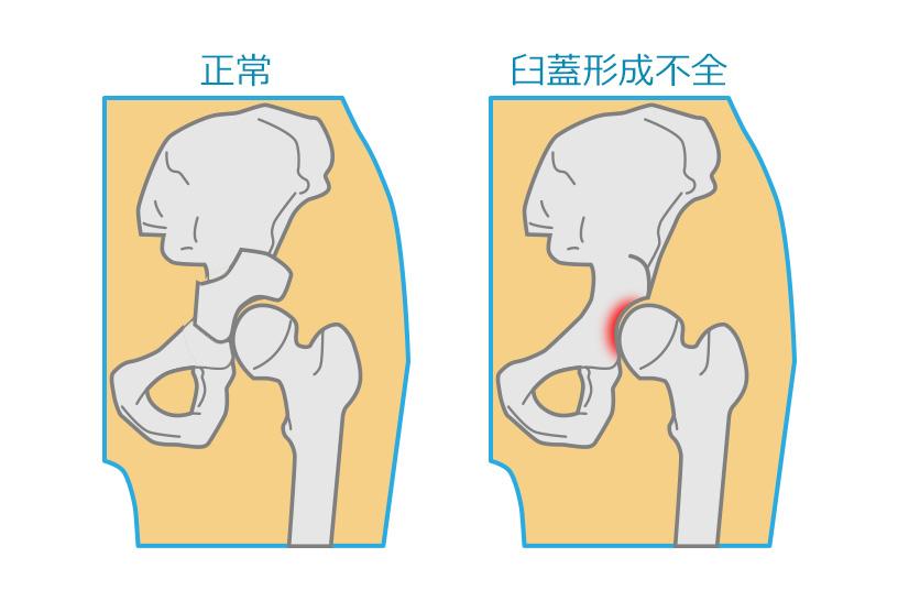 中高年に多い股関節痛。その痛みは臼蓋形成不全かもしれません