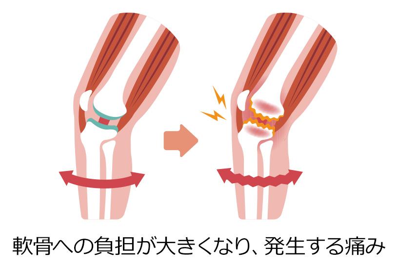 膝の痛みや変形性膝関節症に関する基礎知識