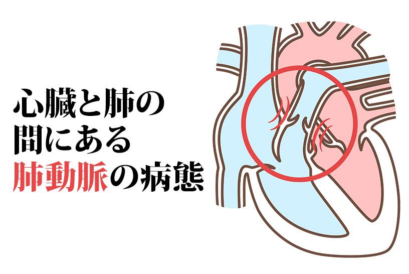肺高血圧症は肺動脈の血圧が上がる病気